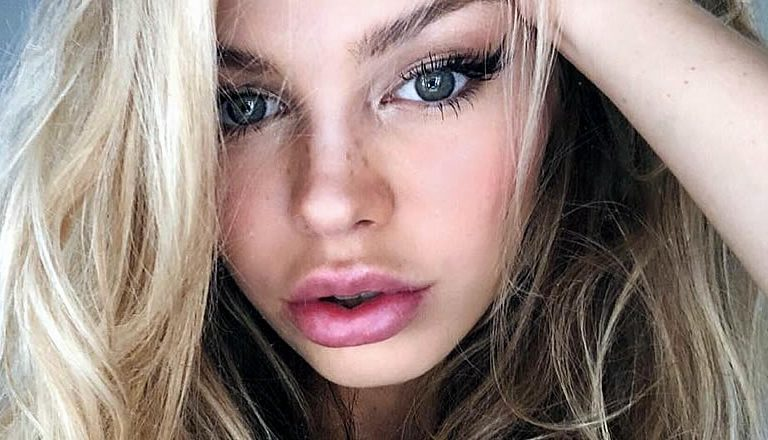 Мнение парней по поводу уколов красоты